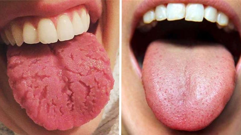 有多久沒有好好看看舌頭了?舌頭的顏色、舌苔所透露出的健康警訊,你注意到了嗎?