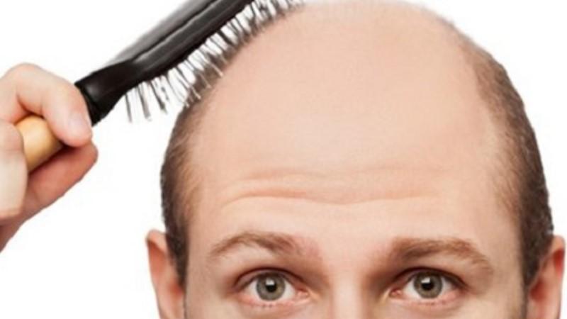 ✏ 你必須了解頭髮及頭皮透露出來的警訊!