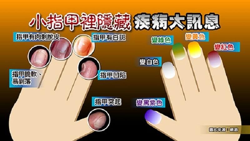 指甲有白斑代表...?!小指甲裡竟然隱藏疾病重大訊息!4個步驟,教妳擁有健康美甲...